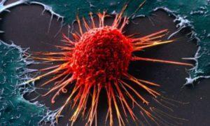 Низкодифференцированный рак прямой кишки