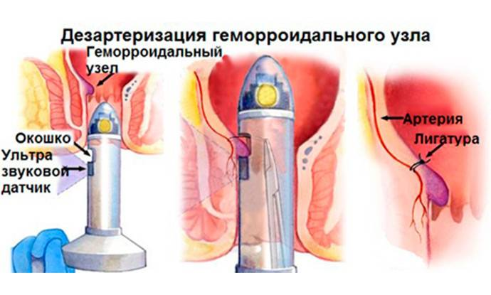 Современный метод лечения геморроя, особенности и этапы дезартеризации