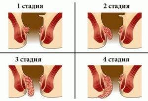 Симптомы проктита и лечение воспаления прямой кишки различной этиологии