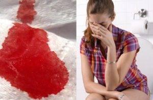 При дефекации кровь причины заболевания диагностика рекомендации