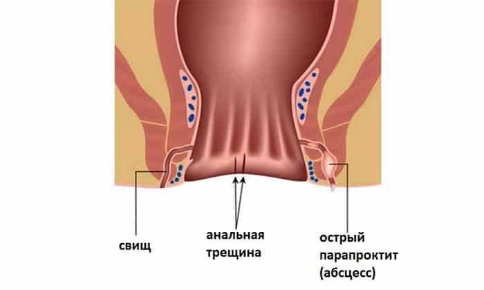Свищ прямой кишки виды причины симптомы диагностика лечение профилактика