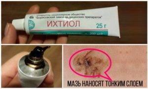 Ихтиоловые свечи побочные эффекты