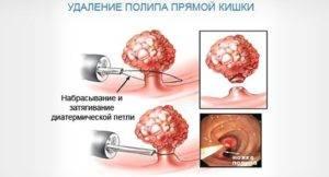 Полип прямой кишки (анальный полип): причины, симптомы и лечение в статье проктолога Богданов Д. В.