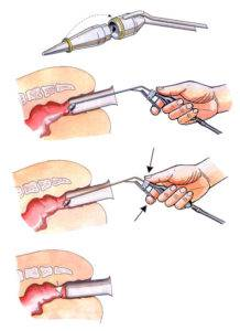 Как удалить наружный геморроидальный узел