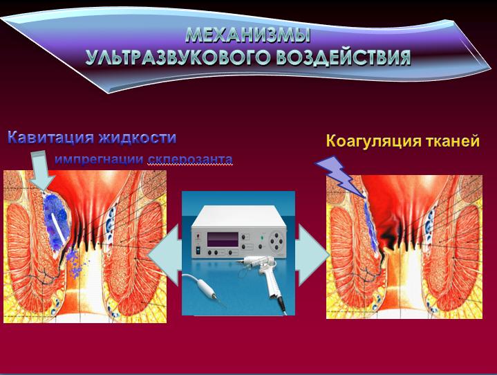 Алмаг 01 лечение геморроя